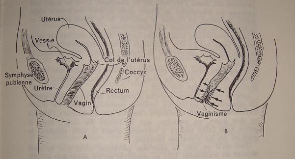 vaginisme